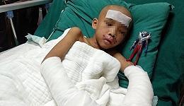 【深度】7岁男童被父母虐待或需截肢,强制报告制度亟待完善