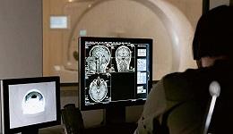 医疗影像AI六年记:让人工智能读报告,你愿意吗?